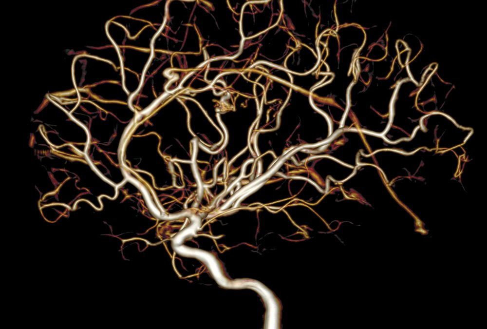 Acupunctuur bij herseninfarct