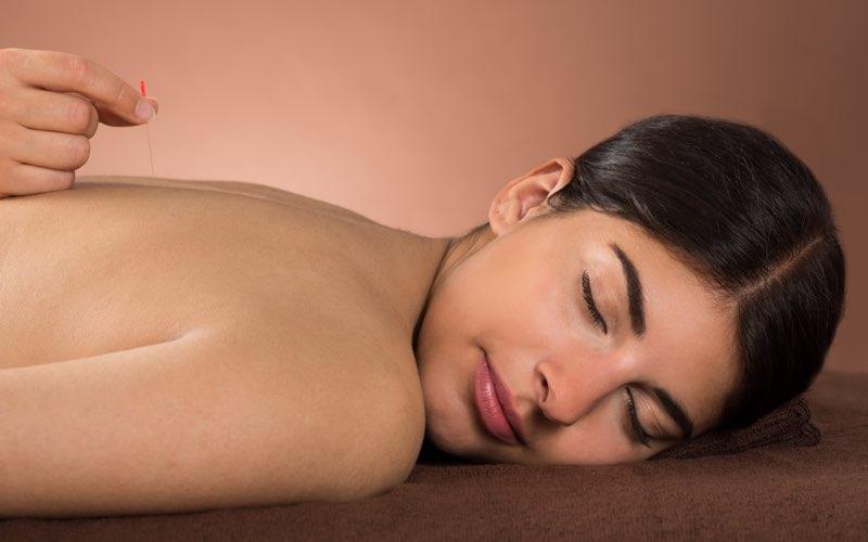 erkende acupunctuurbehandelingen