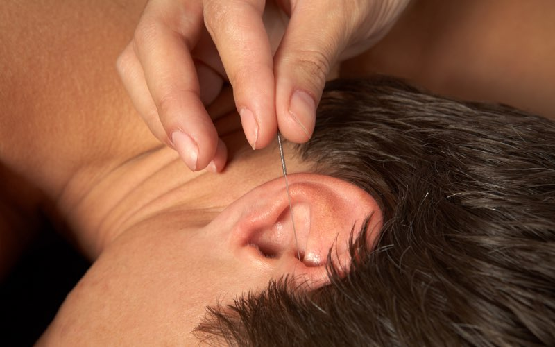 oor acupunctuur in Den Haag