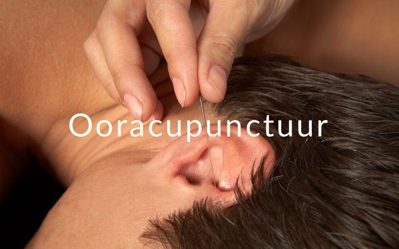 Ooracupunctuur