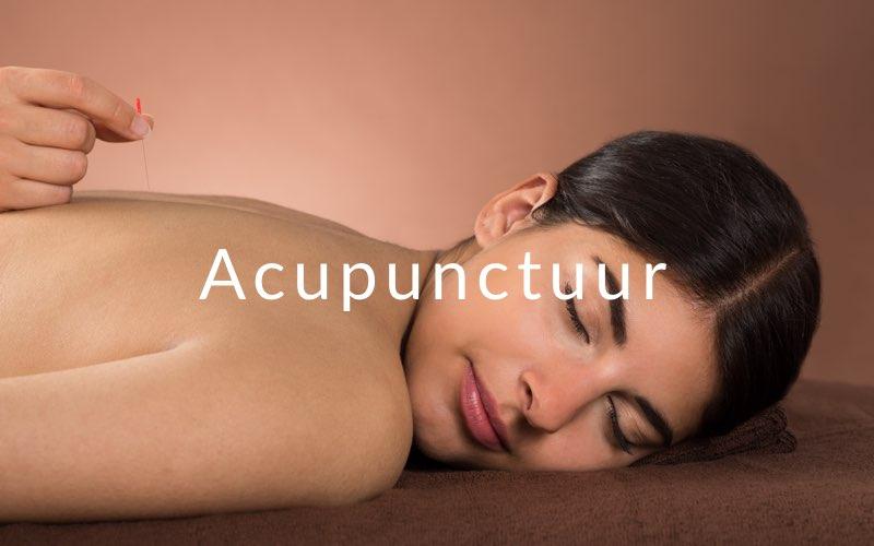 Acupunctuur fybromyalgie